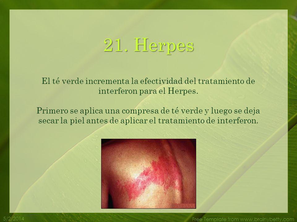 5/2/2014 Free Template from www.brainybetty.com 20. Infección de Oídos El té verde es de gran ayuda para combatir el problema de infección de oídos. P