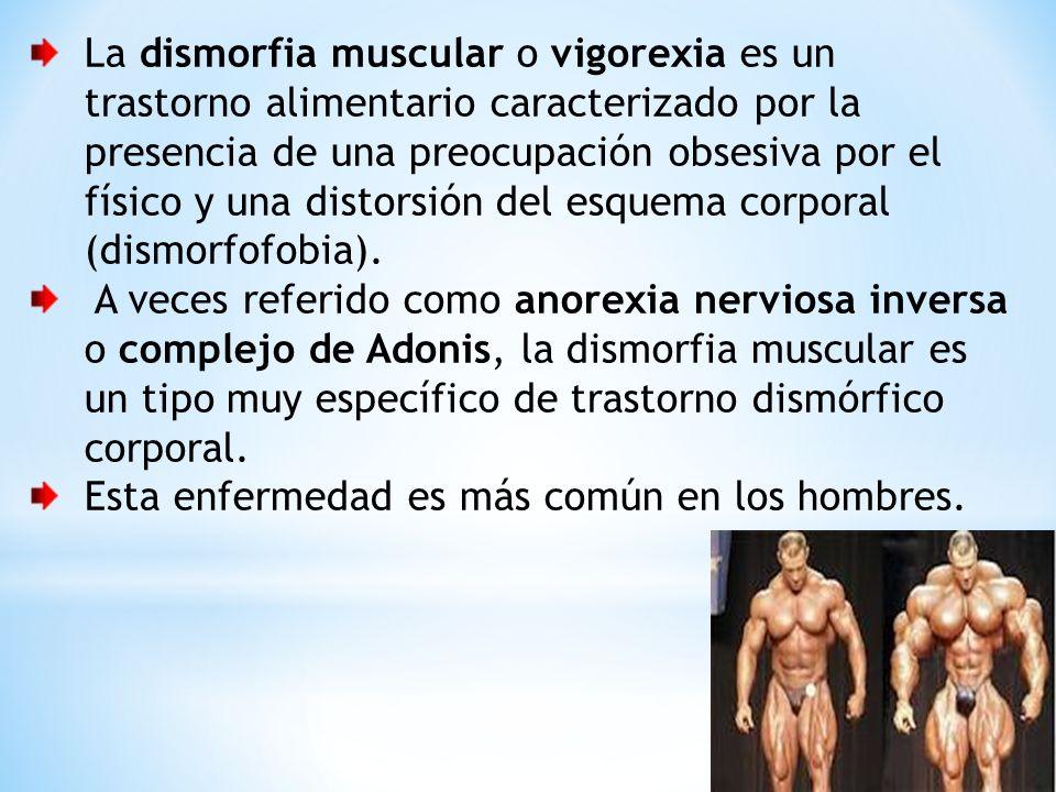 La dismorfia muscular o vigorexia es un trastorno alimentario caracterizado por la presencia de una preocupación obsesiva por el físico y una distorsi