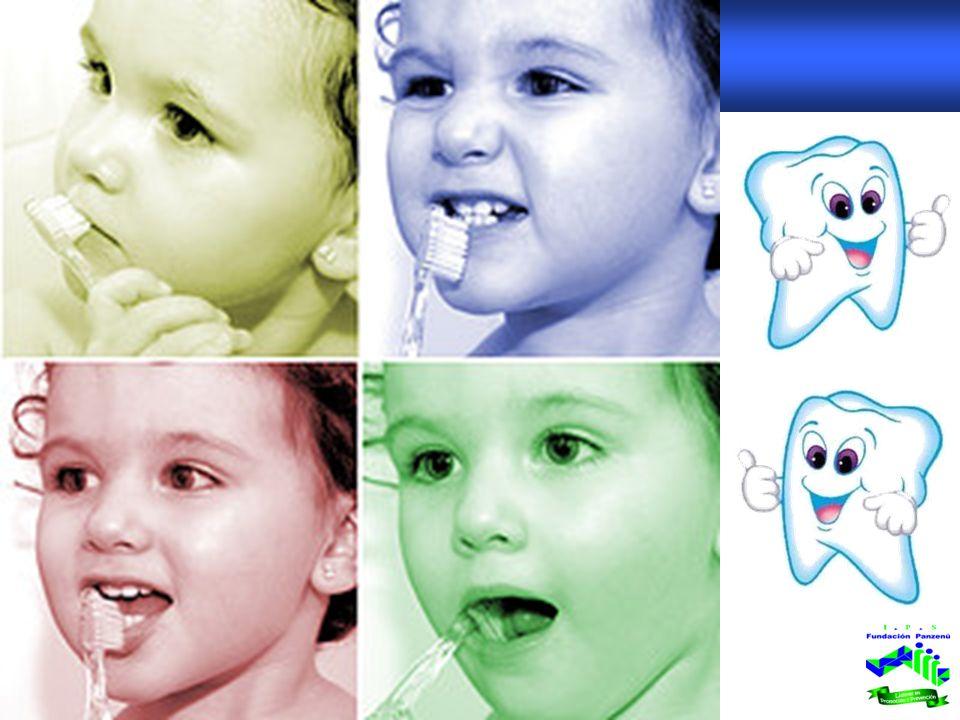 ETAPAS DE LA ENFERMEDAD PERIODONTAL SaludGingivitis Periodontitis Leve Periodontitis Moderada Periodontitis Avanzada