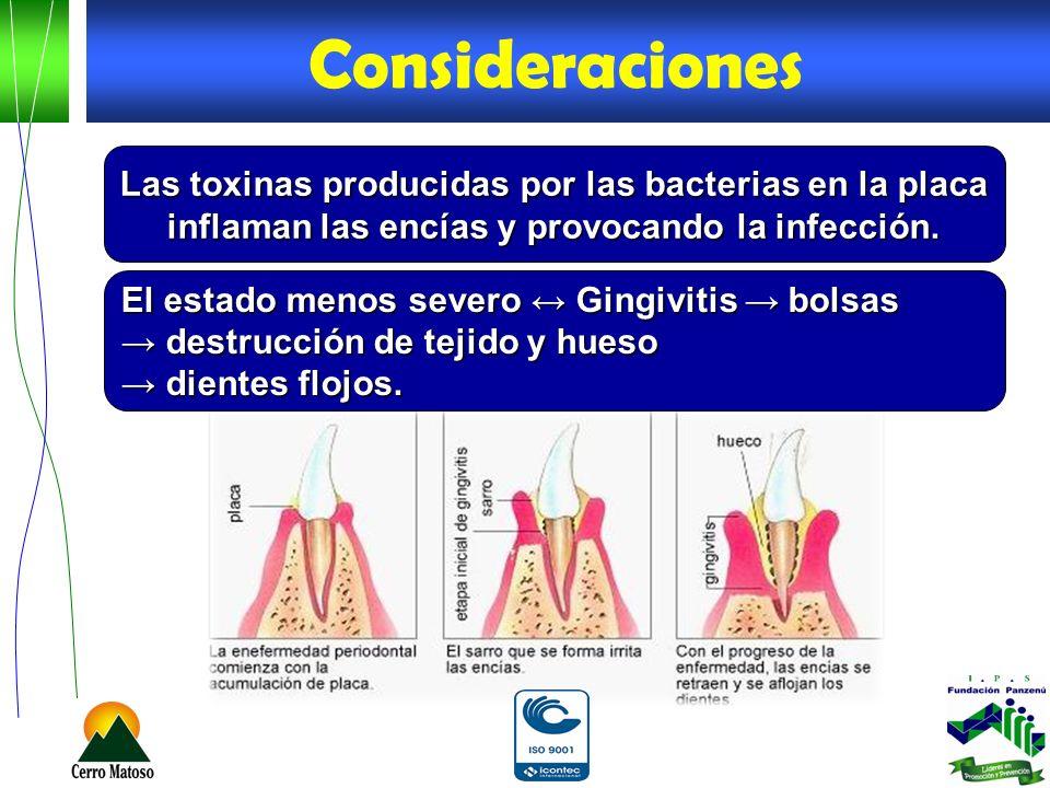 Las toxinas producidas por las bacterias en la placa inflaman las encías y provocando la infección. El estado menos severo Gingivitis bolsas destrucci