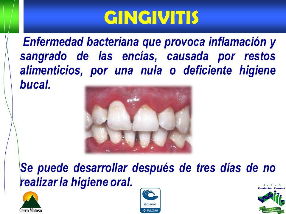 Enfermedad bacteriana que provoca inflamación y sangrado de las encías, causada por restos alimenticios, por una nula o deficiente higiene bucal. Se p