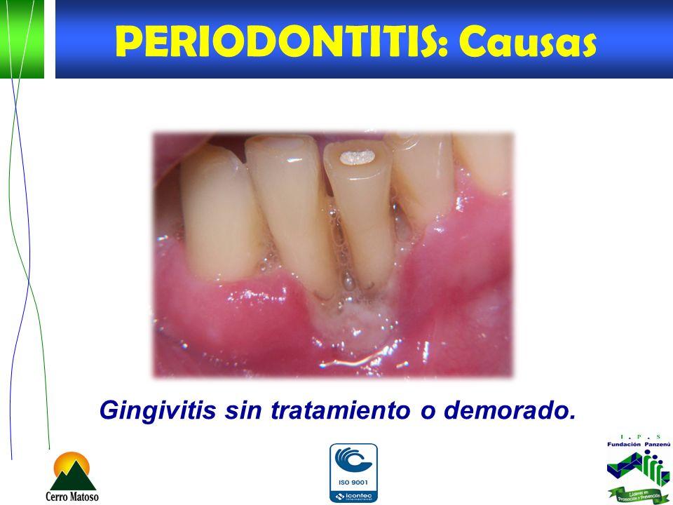 Gingivitis sin tratamiento o demorado. PERIODONTITIS: Causas