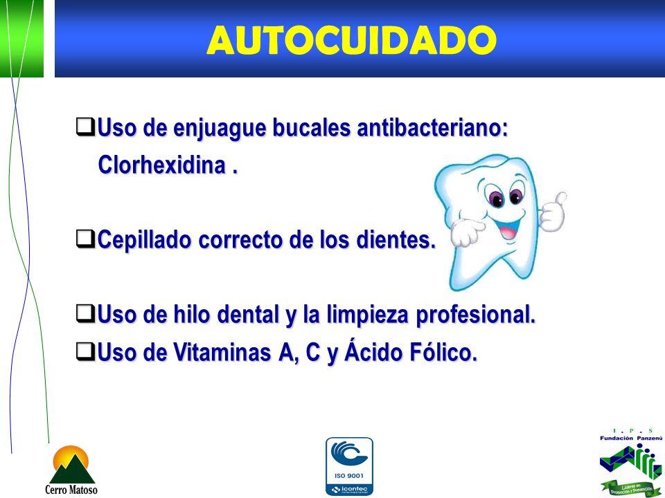 Uso de enjuague bucales antibacteriano: Uso de enjuague bucales antibacteriano: Clorhexidina. Clorhexidina. Cepillado correcto de los dientes. Cepilla