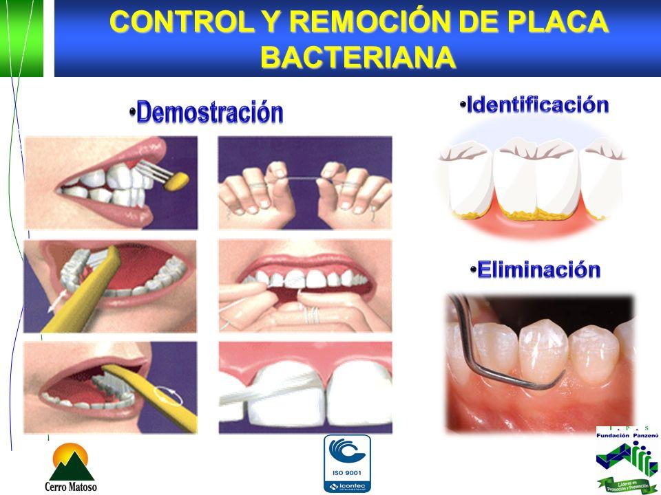 Identificación de Placa Bacteriana, con el uso de Pastillas Reveladoras.