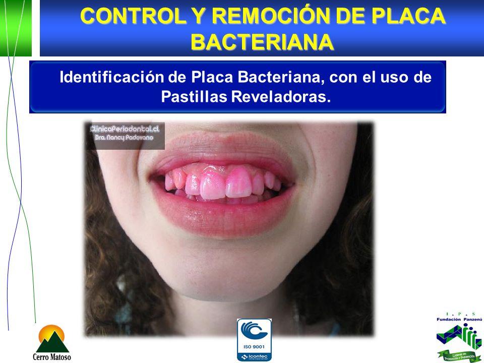 Identificación de Placa Bacteriana, con el uso de Pastillas Reveladoras. CONTROL Y REMOCIÓN DE PLACA BACTERIANA