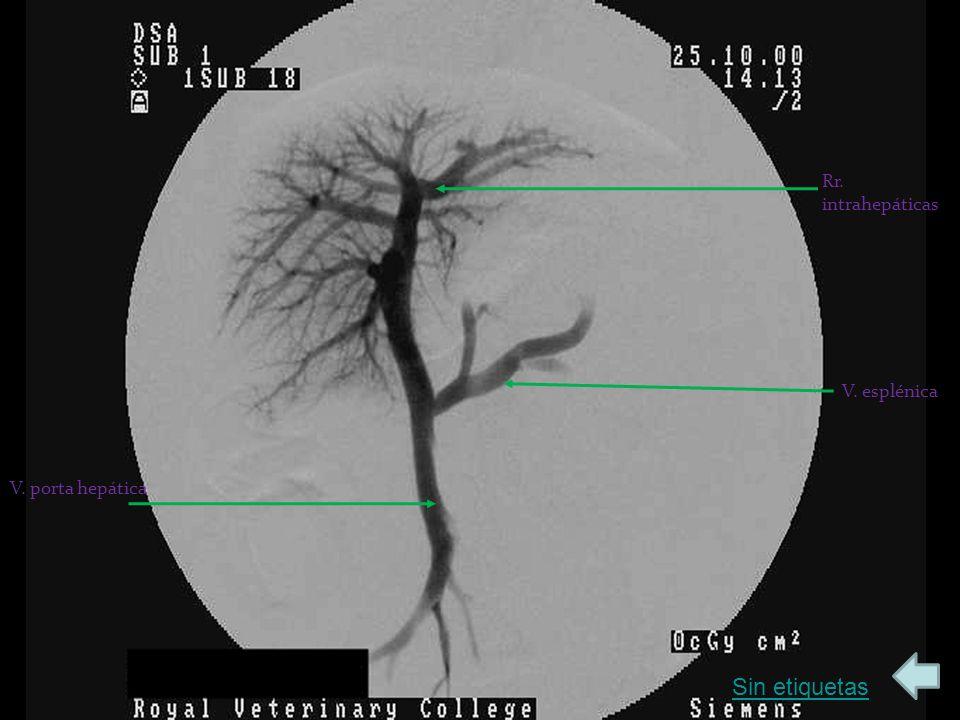 Sin etiquetas Rr. intrahepáticas V. porta hepática V. esplénica