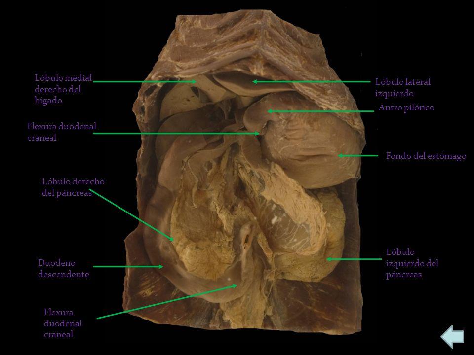 Lóbulo medial derecho del hígado Lóbulo lateral izquierdo Antro pilórico Fondo del estómago Lóbulo izquierdo del páncreas Duodeno descendente Lóbulo d