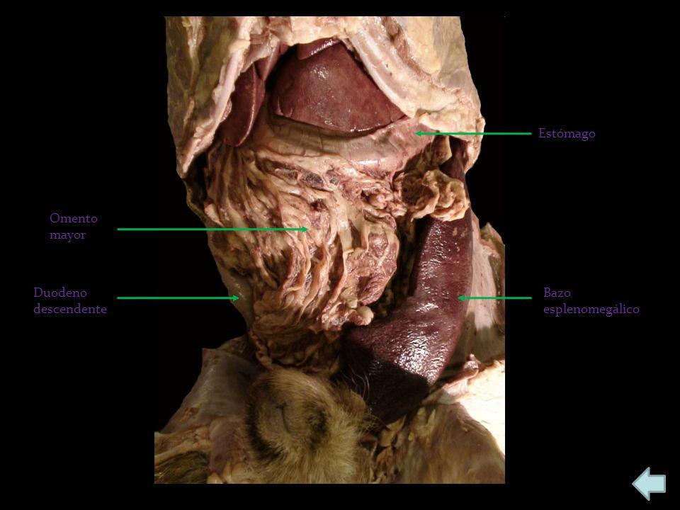 Estómago Bazo esplenomegálico Omento mayor Duodeno descendente