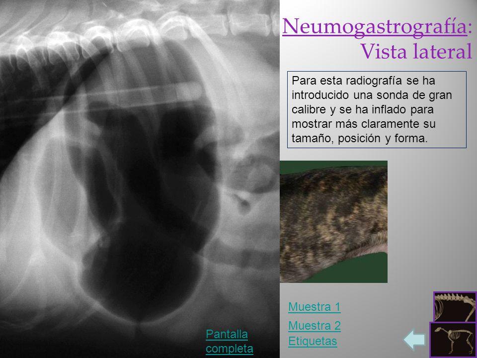 Neumogastrografía: Vista lateral Pantalla completa Etiquetas Para esta radiografía se ha introducido una sonda de gran calibre y se ha inflado para mo