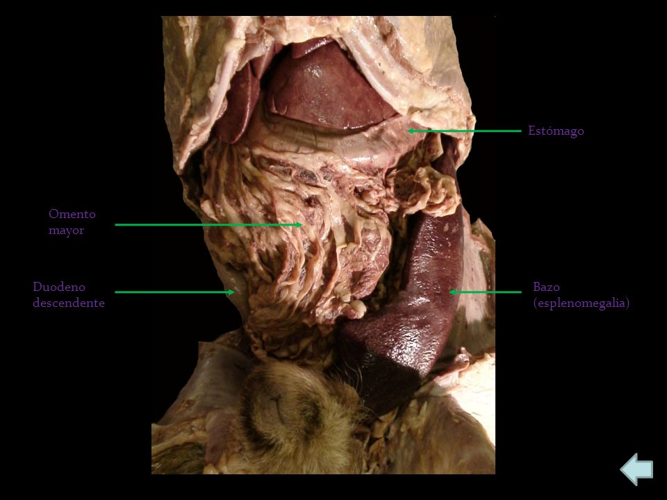 Estómago Bazo (esplenomegalia) Omento mayor Duodeno descendente