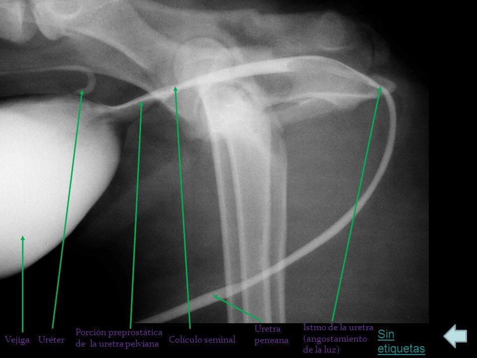 Sin etiquetas VejigaUréter Porción preprostática de la uretra pelviana Colículo seminal Istmo de la uretra (angostamiento de la luz) Uretra peneana