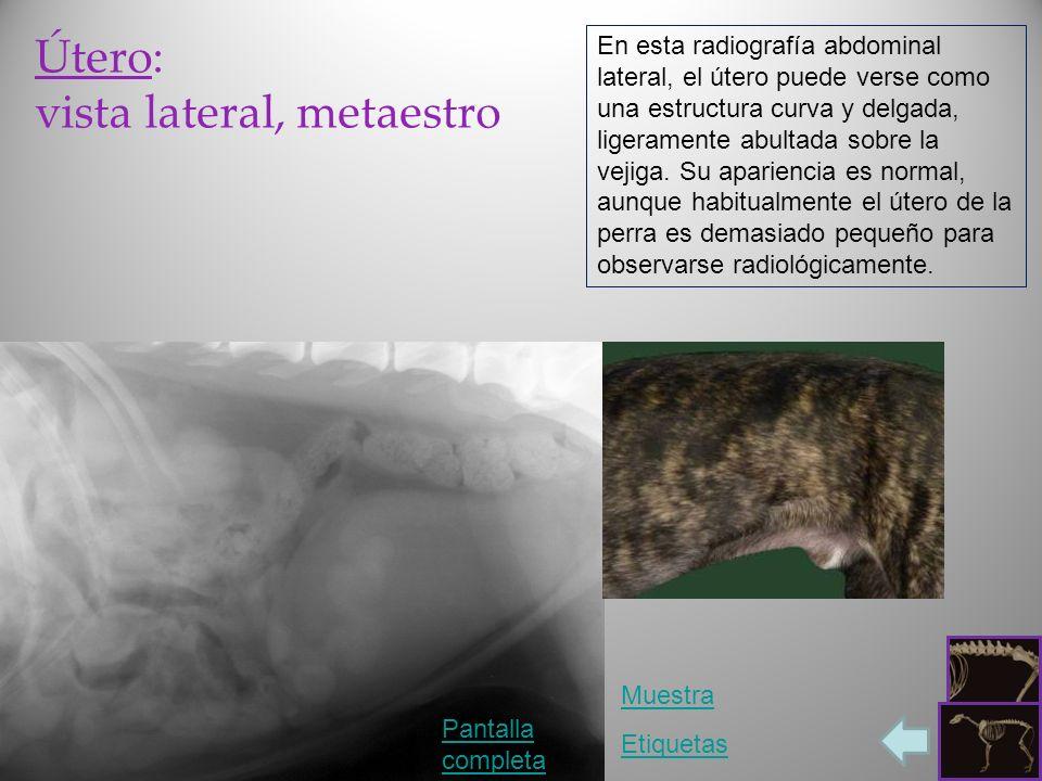 Útero: vista lateral, metaestro Pantalla completa Etiquetas En esta radiografía abdominal lateral, el útero puede verse como una estructura curva y de