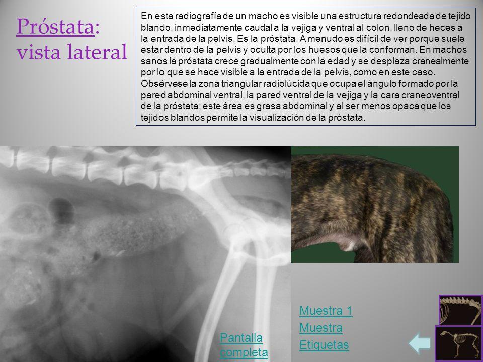 Próstata: vista lateral Pantalla completa Etiquetas En esta radiografía de un macho es visible una estructura redondeada de tejido blando, inmediatame