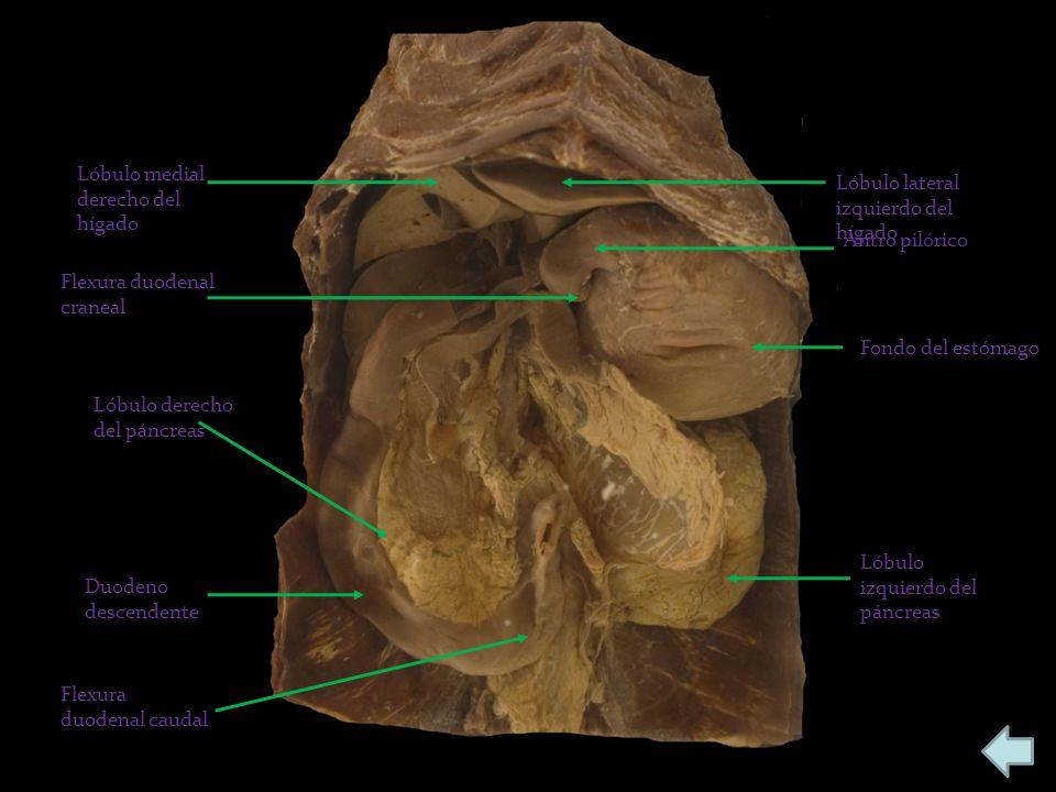 Lóbulo medial derecho del hígado Lóbulo lateral izquierdo del hígado Antro pilórico Fondo del estómago Lóbulo izquierdo del páncreas Duodeno descenden