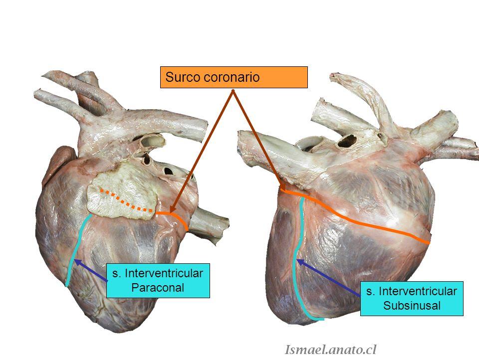 s. Interventricular Subsinusal s. Interventricular Paraconal Surco coronario Ismael.anato.cl