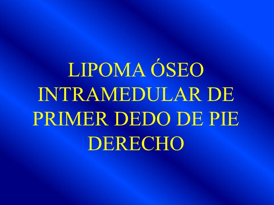 LIPOMA ÓSEO INTRAMEDULAR DE PRIMER DEDO DE PIE DERECHO