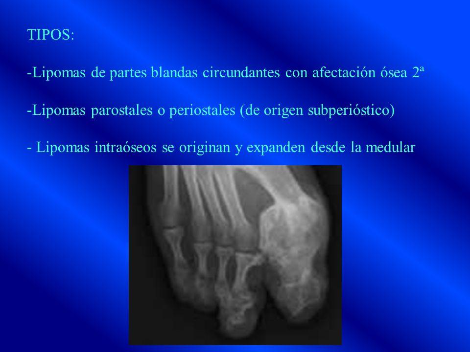 TIPOS: -Lipomas de partes blandas circundantes con afectación ósea 2ª -Lipomas parostales o periostales (de origen subperióstico) - Lipomas intraóseos