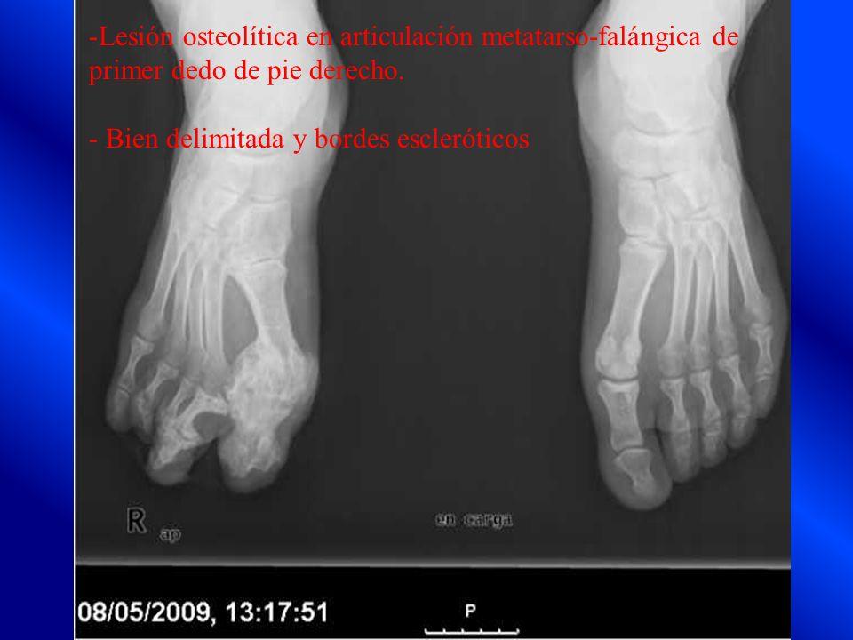 -Lesión osteolítica en articulación metatarso-falángica de primer dedo de pie derecho. - Bien delimitada y bordes escleróticos
