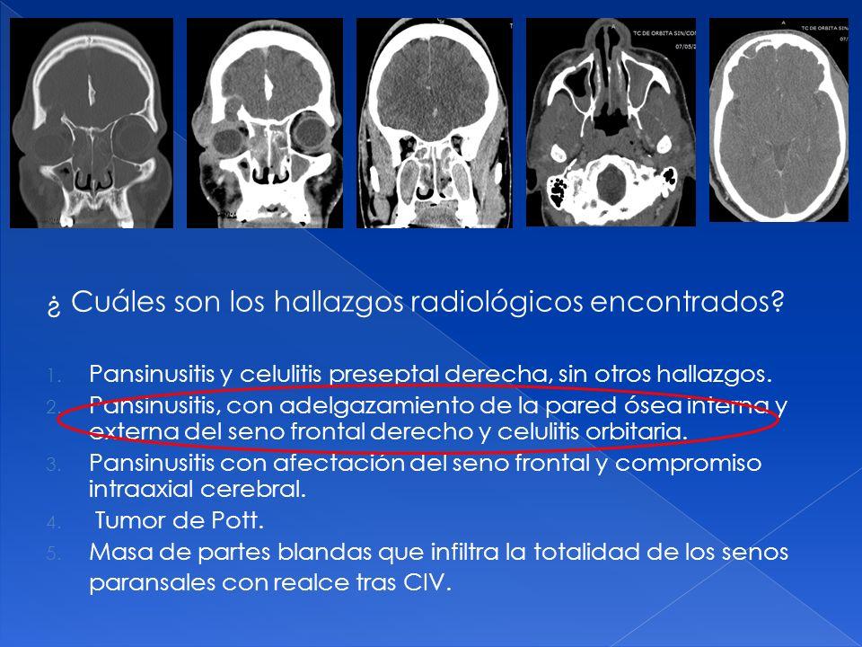 ¿ Cuáles son los hallazgos radiológicos encontrados? 1. Pansinusitis y celulitis preseptal derecha, sin otros hallazgos. 2. Pansinusitis, con adelgaza