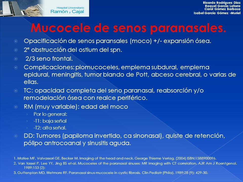 Opacificación de senos paransales (moco) +/- expansión ósea. 2ª obstrucción del ostium del spn. 2/3 seno frontal. Complicaciones: piomucoceles, empiem