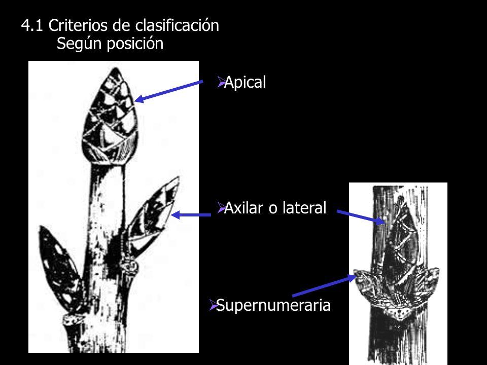 4.1 Criterios de clasificación Según posición Apical Axilar o lateral Supernumeraria
