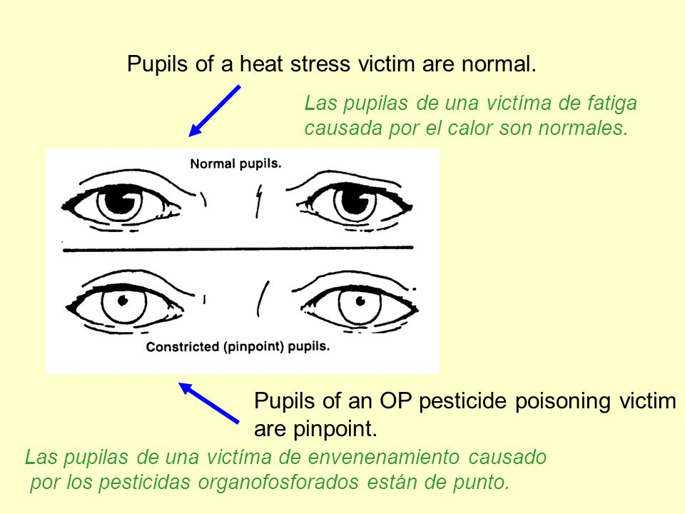 Pupils of a heat stress victim are normal. Pupils of an OP pesticide poisoning victim are pinpoint. Las pupilas de una victíma de fatiga causada por e