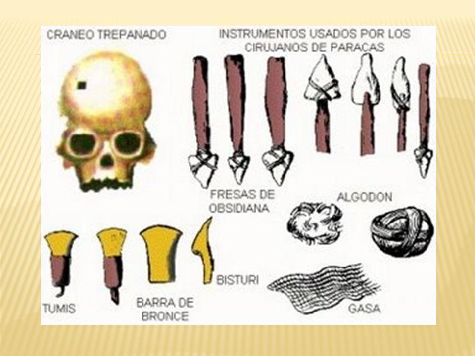Una característica singular de la cultura Paracas era el hecho de que serealizaban trepanaciones craneanas. Se ha encontrado un número bastantesignifi