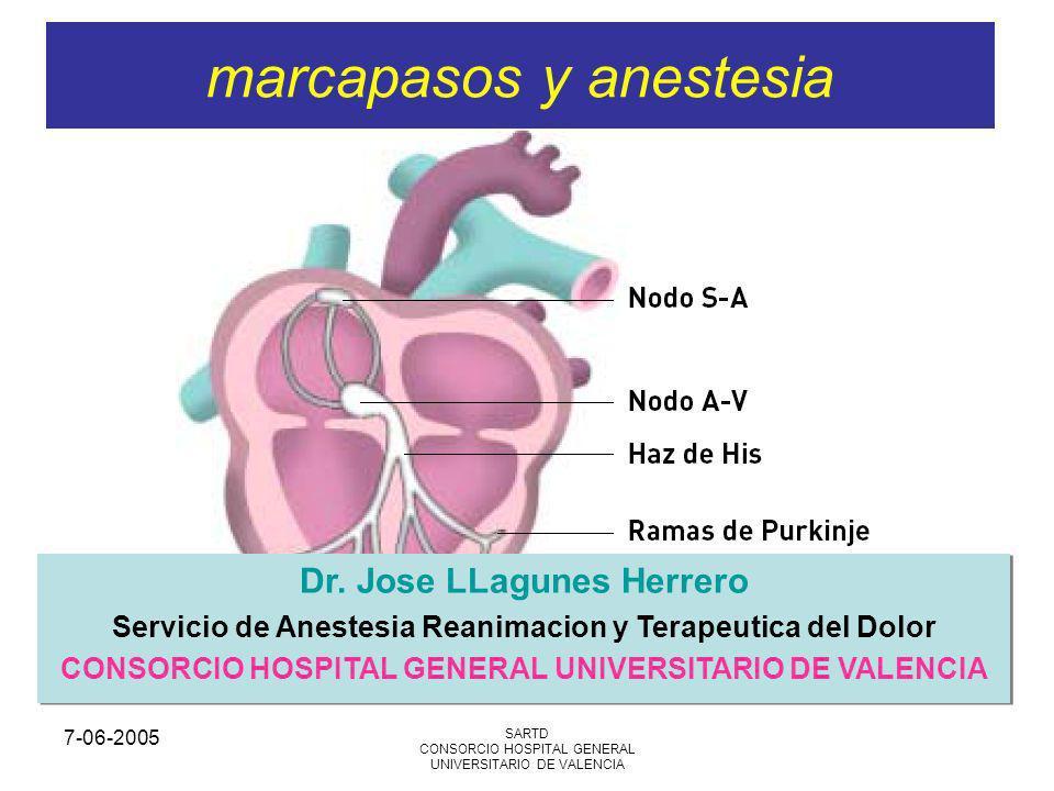 7-06-2005 SARTD CONSORCIO HOSPITAL GENERAL UNIVERSITARIO DE VALENCIA marcapasos y anestesia Dr. Jose LLagunes Herrero Servicio de Anestesia Reanimacio
