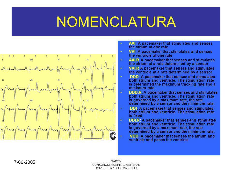 7-06-2005 SARTD CONSORCIO HOSPITAL GENERAL UNIVERSITARIO DE VALENCIA NOMENCLATURA AAI: A pacemaker that stimulates and senses the atrium at one rate VVI: A pacemaker that stimulates and senses the ventricle at one rate AAI.R A pacemaker that senses and stimulates the atrium at a rate determined by a sensor VVI.R A pacemaker that senses and stimulates the ventricle at a rate determined by a sensor DDD: A pacemaker that senses and stimulates both atrium and ventricle.