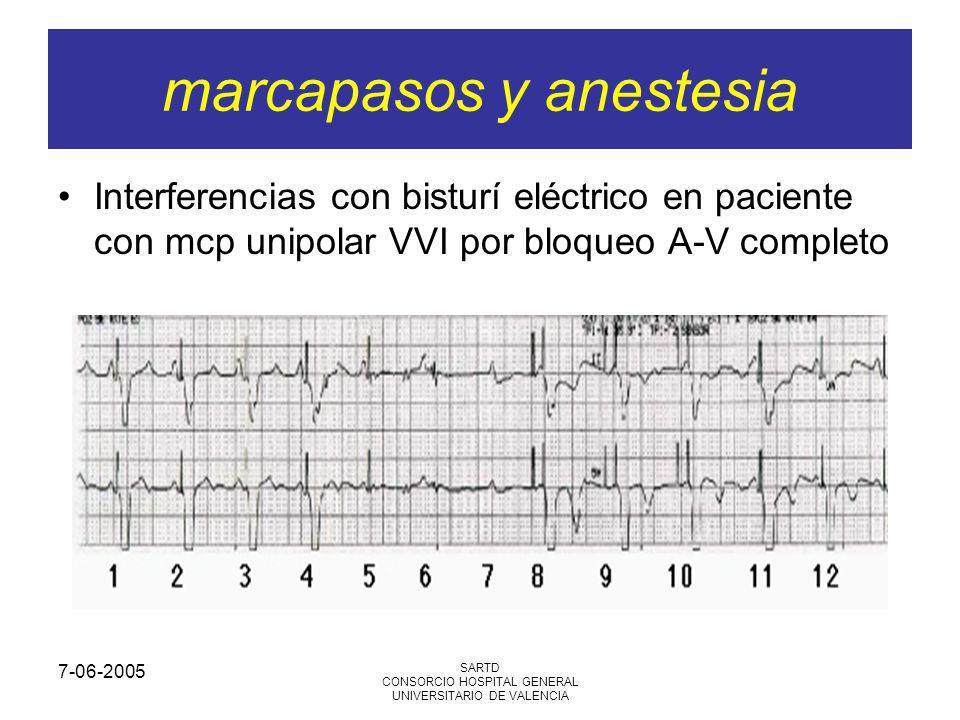 7-06-2005 SARTD CONSORCIO HOSPITAL GENERAL UNIVERSITARIO DE VALENCIA Interferencias con bisturí eléctrico en paciente con mcp unipolar VVI por bloqueo A-V completo marcapasos y anestesia