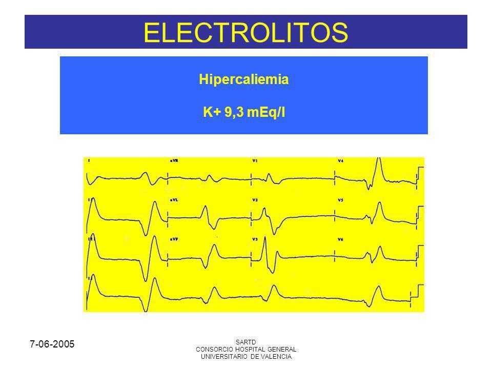 7-06-2005 SARTD CONSORCIO HOSPITAL GENERAL UNIVERSITARIO DE VALENCIA Hipercaliemia K+ 9,3 mEq/l ELECTROLITOS