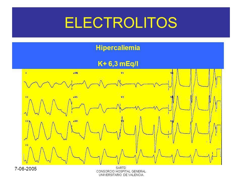 7-06-2005 SARTD CONSORCIO HOSPITAL GENERAL UNIVERSITARIO DE VALENCIA ELECTROLITOS Hipercaliemia K+ 6,3 mEq/l