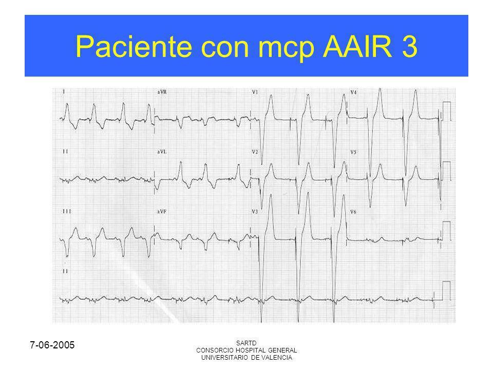 7-06-2005 SARTD CONSORCIO HOSPITAL GENERAL UNIVERSITARIO DE VALENCIA Paciente con mcp AAIR 3