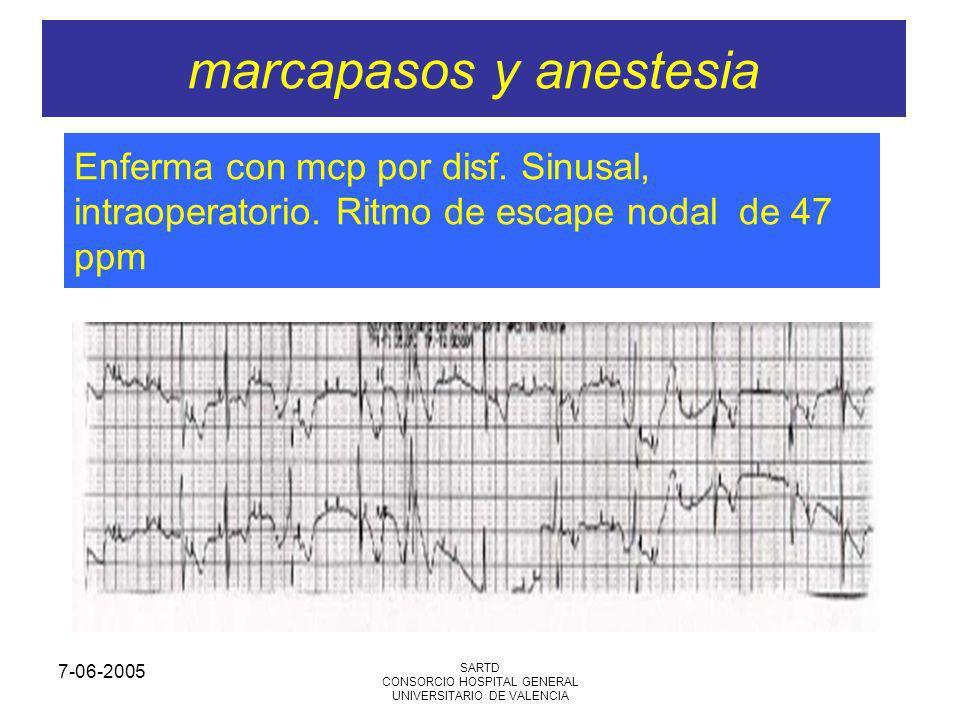 7-06-2005 SARTD CONSORCIO HOSPITAL GENERAL UNIVERSITARIO DE VALENCIA marcapasos y anestesia Enferma con mcp por disf. Sinusal, intraoperatorio. Ritmo