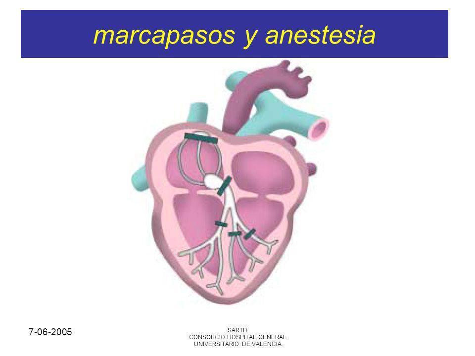 7-06-2005 SARTD CONSORCIO HOSPITAL GENERAL UNIVERSITARIO DE VALENCIA fisiología de marcapasos 2 TERAPIA DE RESINCRONIZACIÓN CARDIACA (TRC) Pacientes con insuficiencia cardiaca se benefician de optimizar la estimulación cardiaca con mcp secuencial con estimulación biventricular A diferencia de los pacientes con mcp monocameral o bicameral, estos pacientes tiene mayor morbilidad y aumenta el riesgo anestésico Optimizar la terapia medica: vasodilatadores, diuréticos o b-bloqueantes Es importantísimo la verificación del buen funcionamiento del mcp en terapia de resincronización.
