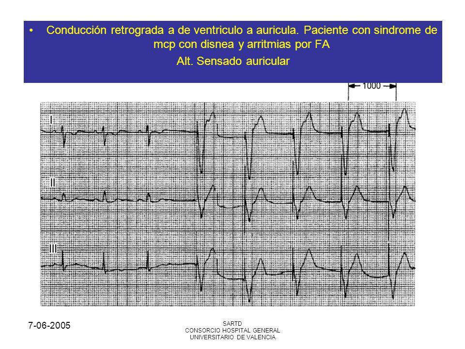 7-06-2005 SARTD CONSORCIO HOSPITAL GENERAL UNIVERSITARIO DE VALENCIA Conducción retrograda a de ventriculo a auricula. Paciente con sindrome de mcp co