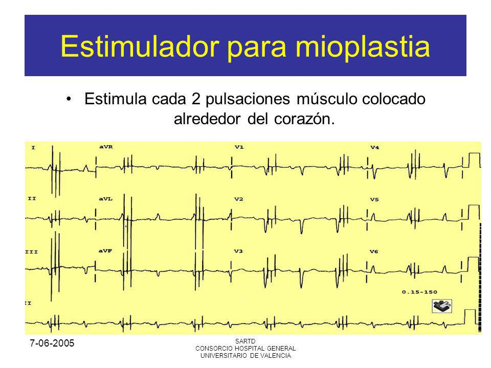 7-06-2005 SARTD CONSORCIO HOSPITAL GENERAL UNIVERSITARIO DE VALENCIA Estimulador para mioplastia Estimula cada 2 pulsaciones músculo colocado alrededo
