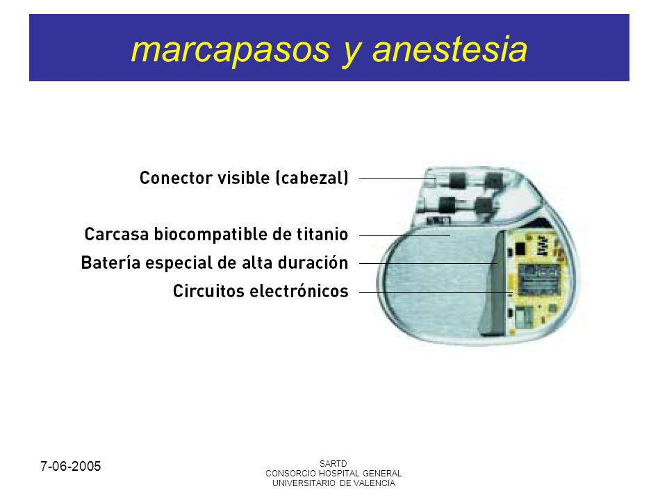 7-06-2005 SARTD CONSORCIO HOSPITAL GENERAL UNIVERSITARIO DE VALENCIA marcapasos y anestesia