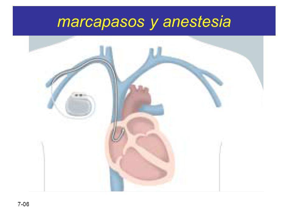 7-06-2005 SARTD CONSORCIO HOSPITAL GENERAL UNIVERSITARIO DE VALENCIA IMPORTANTE Los pacientes siguen sus revisiones Los mcp suelen funcionar bien