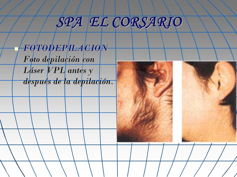 SPA EL CORSARIO FOTODEPILACION Foto depilación con Láser VPL antes y después de la depilación. FOTODEPILACION Foto depilación con Láser VPL antes y de