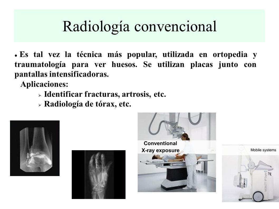 Radiología convencional Es tal vez la técnica más popular, utilizada en ortopedia y traumatología para ver huesos.