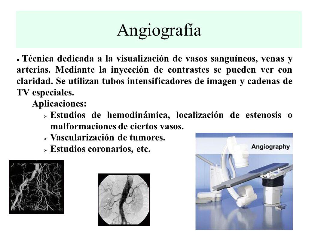Angiografía Técnica dedicada a la visualización de vasos sanguíneos, venas y arterias.