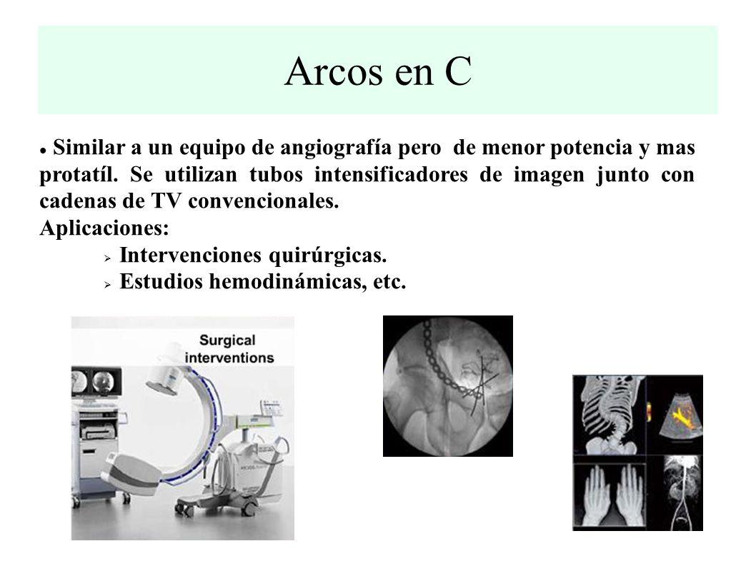 Arcos en C Similar a un equipo de angiografía pero de menor potencia y mas protatíl.