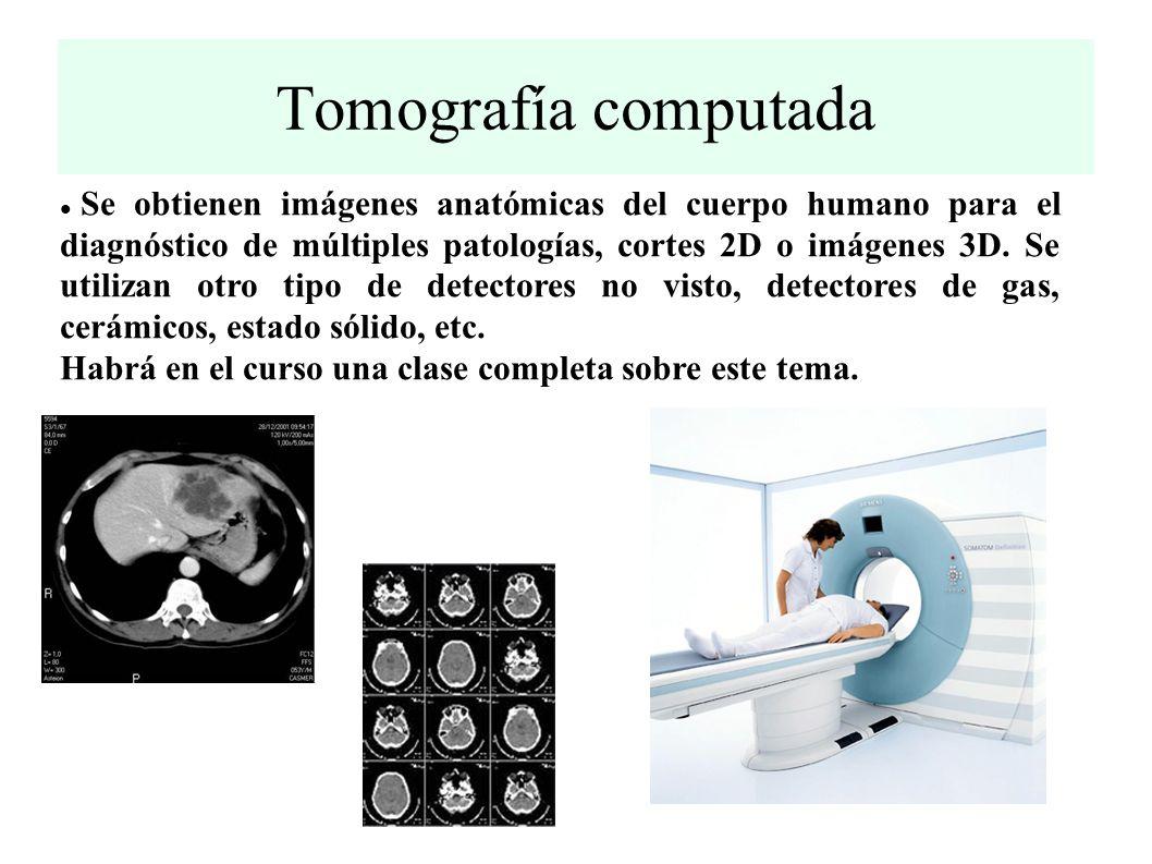 Tomografía computada Se obtienen imágenes anatómicas del cuerpo humano para el diagnóstico de múltiples patologías, cortes 2D o imágenes 3D.