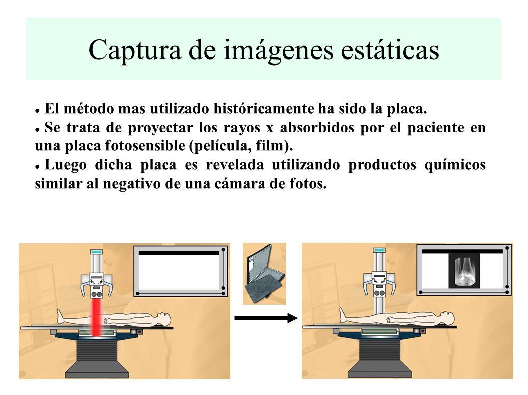 Captura de imágenes estáticas El método mas utilizado históricamente ha sido la placa.