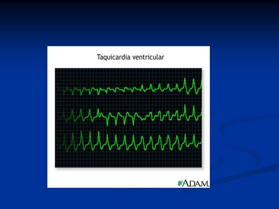CRITERIOS DEFINITORIOS POR ECG FRECUENCIA/COMPLEJO QRS: imposible de determinar, no hay ondas P, QRS ni T reconocibles.