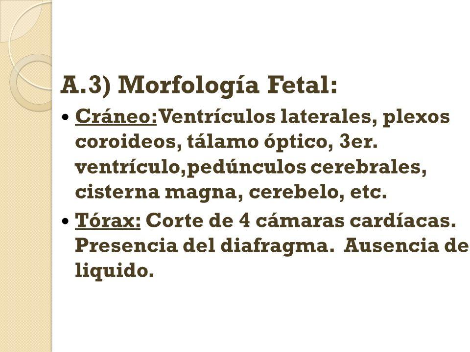 A.3) Morfología Fetal: Cráneo: Ventrículos laterales, plexos coroideos, tálamo óptico, 3er. ventrículo,pedúnculos cerebrales, cisterna magna, cerebelo