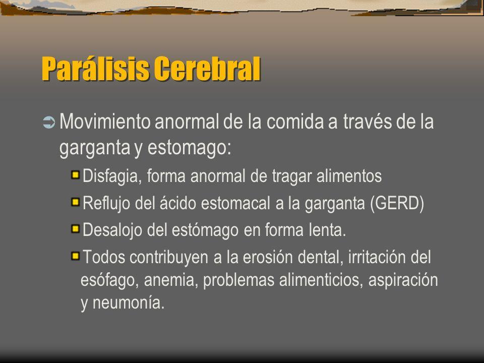 Parálisis Cerebral Movimiento anormal de la comida a través de la garganta y estomago: Disfagia, forma anormal de tragar alimentos Reflujo del ácido e