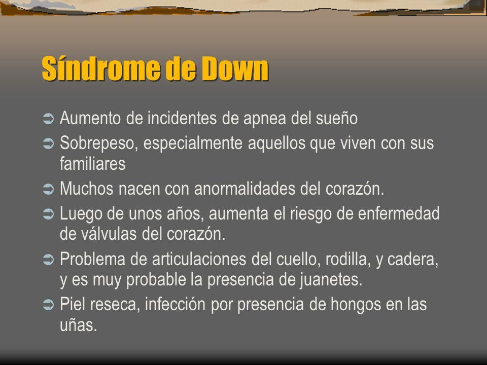 Síndrome de Down Aumento de incidentes de apnea del sueño Sobrepeso, especialmente aquellos que viven con sus familiares Muchos nacen con anormalidade