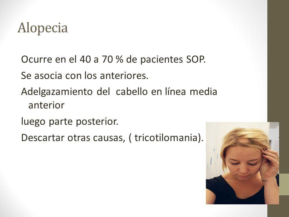 Alopecia Ocurre en el 40 a 70 % de pacientes SOP. Se asocia con los anteriores. Adelgazamiento del cabello en línea media anterior luego parte posteri